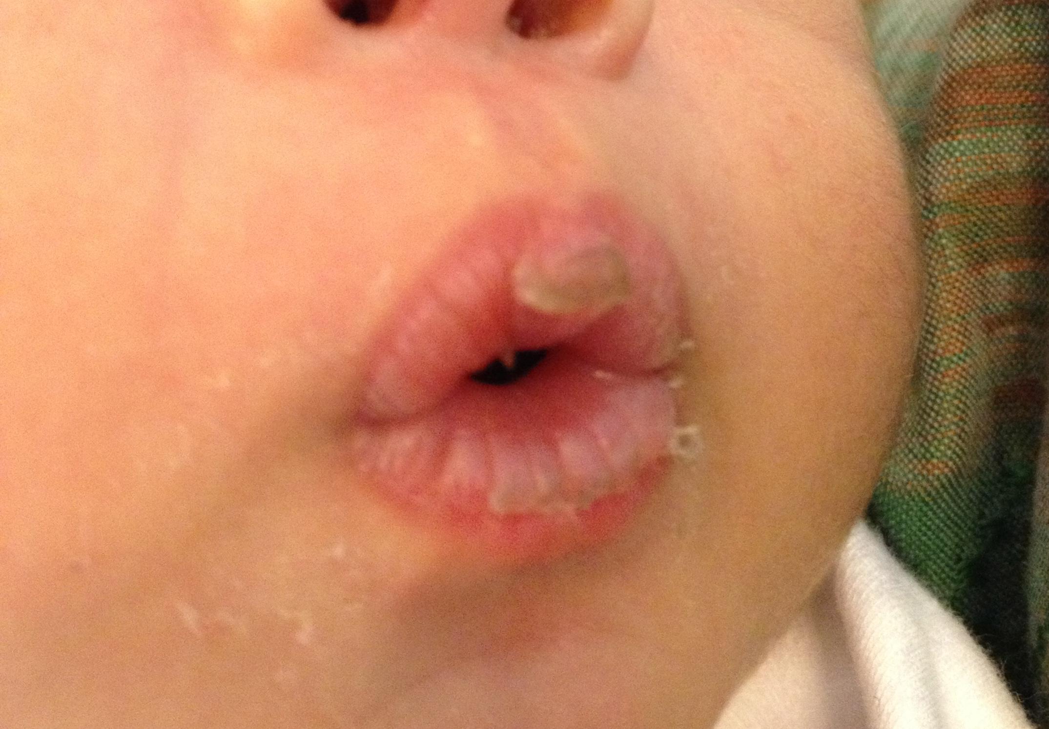 cara mengatasi bibir pecah pecah pada bayi